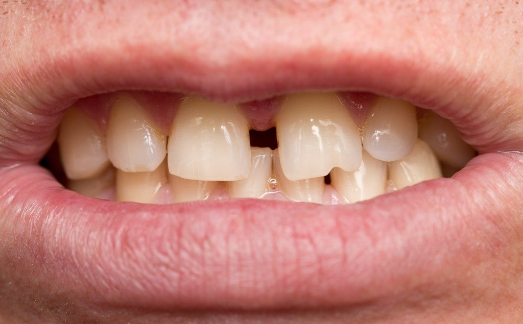 Person with crooked teeth