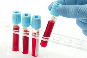 HIV blood tests