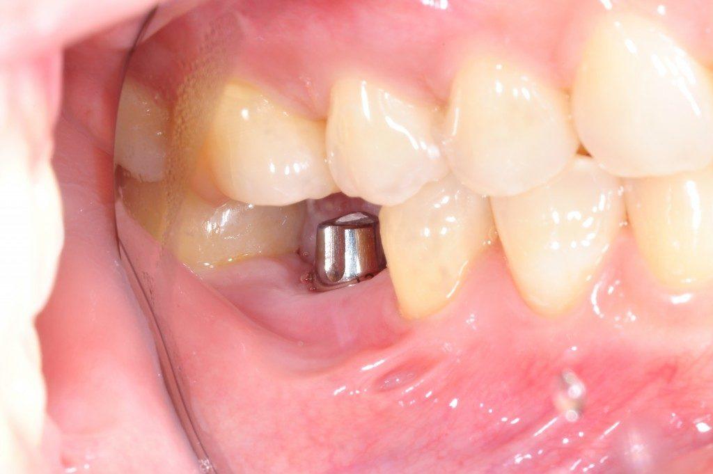 metal implant